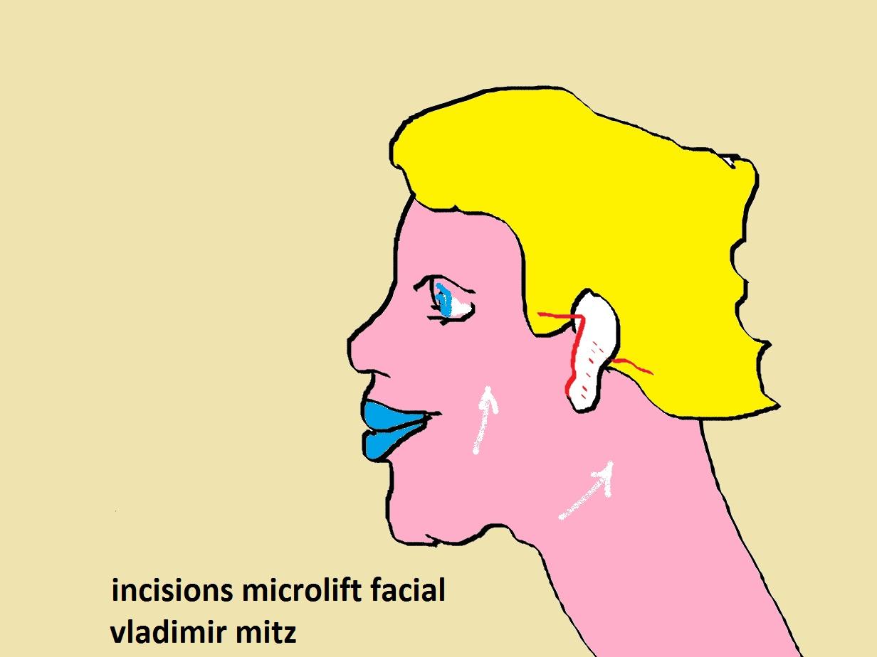 microlift vladimir mitz
