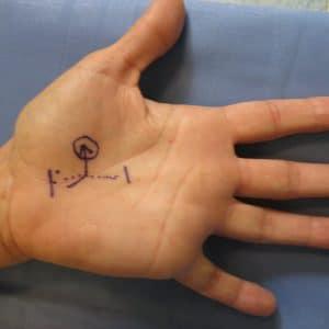 incision pour libération nerf médian à la paume