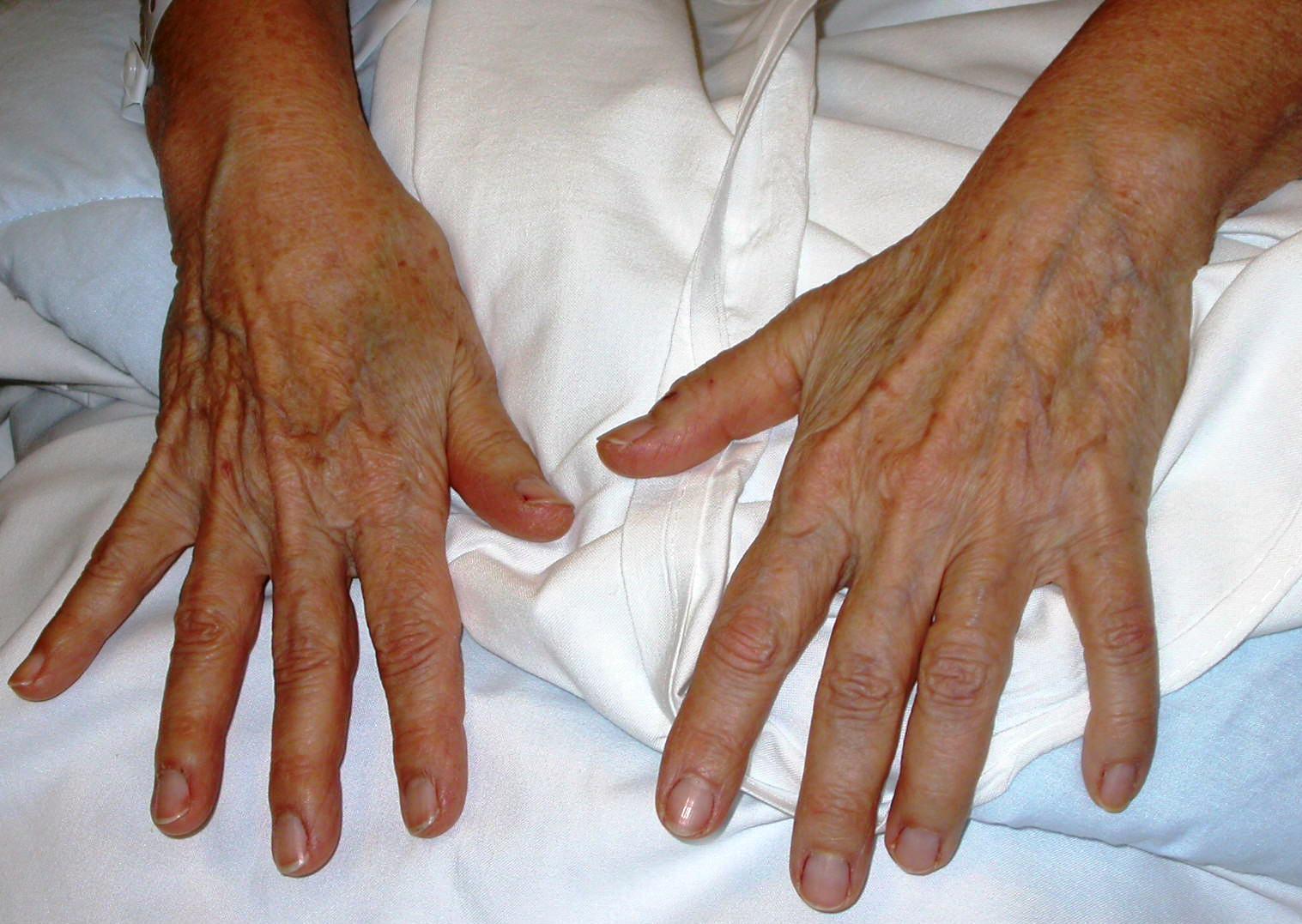 main vieillie trop mince, ,indication de lipofilling ou fillers