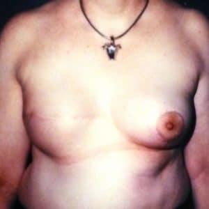 reconstruction du sein par prothèse interne