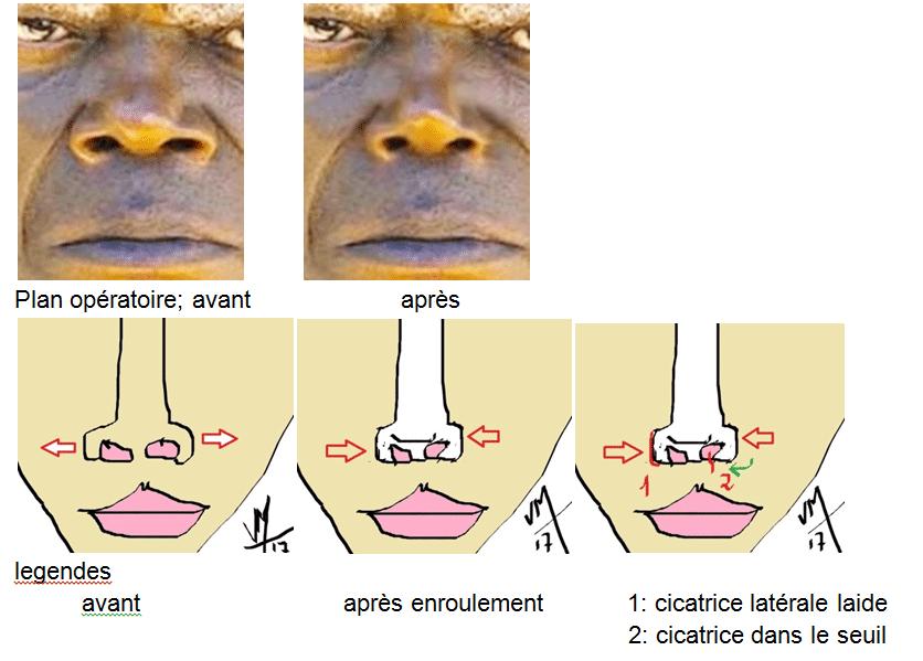 resserrer un nez épaté