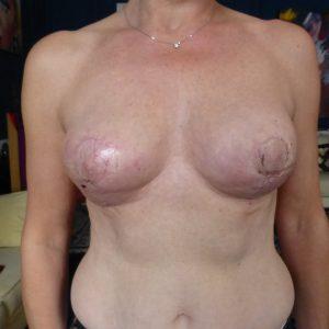 réduction mammaire après