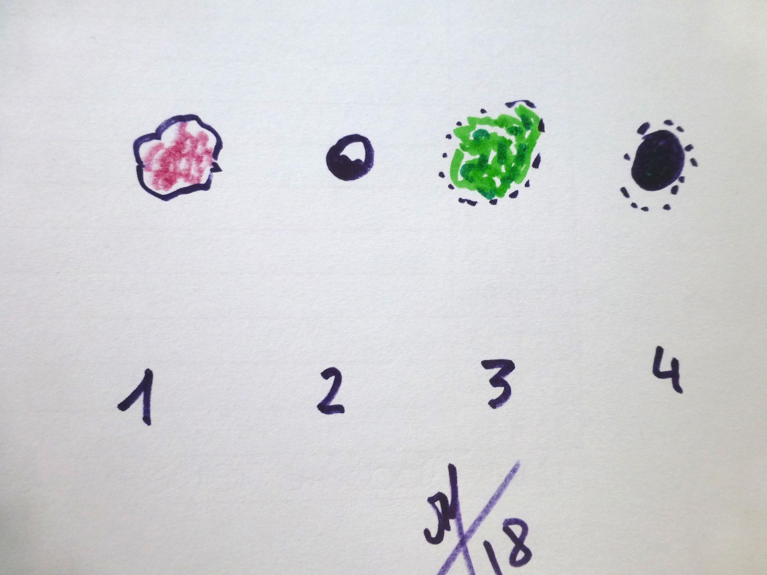 1 épi basocellulaire 2 naevus bénin 3 fibrome 4 lmélanome