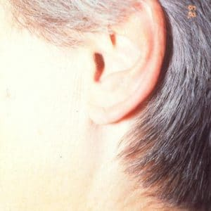 lobule de l'oreille