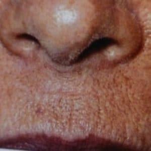 lèvre supérieure tidulée:dermabrasion avant