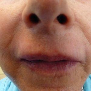 correction des ridules de la lèvre supérieure après dermabrasion et injection d'A.H