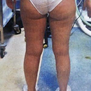 liposuccion cuisses fesses genoux avant