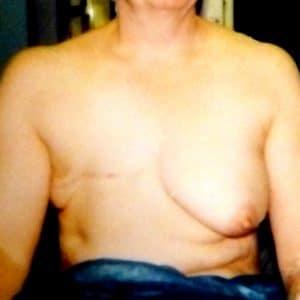 cicatrice après mastectomie