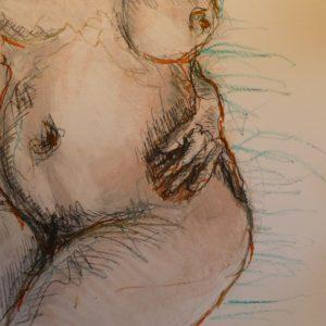augmentation des fesses, cellulite fessière, lifting des fesses