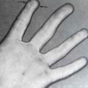 chirurgie de la main, lambeau thénarien sur l'index