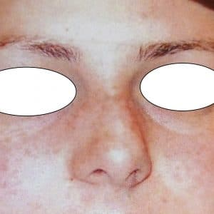 nez dévié avant rhinoseptoplastie